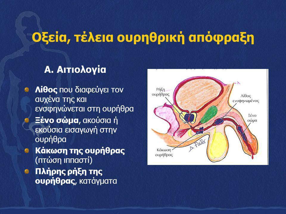 Οξεία, τέλεια ουρηθρική απόφραξη Α. Αιτιολογία Λίθος που διαφεύγει τον αυχένα της και ενσφηνώνεται στη ουρήθρα Ξένο σώμα, ακούσια ή εκούσια εισαγωγή σ