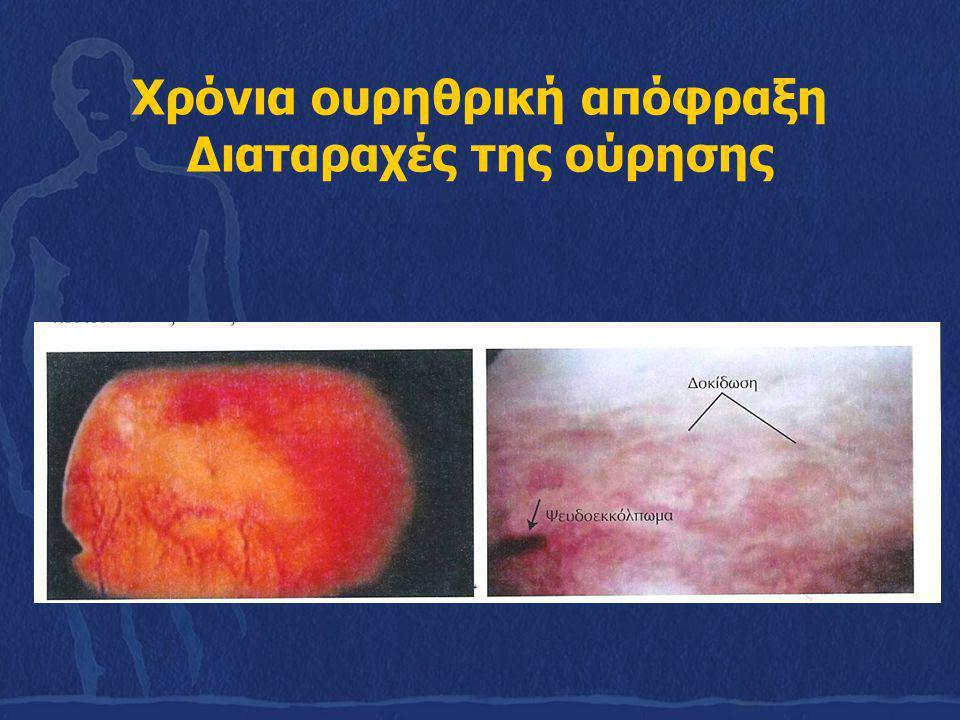 Ετερόπλευρη πλήρης ουρητηρική απόφραξη Κωλικός του νεφρού Παθοφυσιολογία της οξείας απόφραξης Η καψική πίεση αποκτά γρήγορα υψηλές τιμές Καψική + κολλοειδοσμωτική Εξισορρόπιση ή εξουδετέρωση της δραστικής πίεσης (για 24- 48 ώρες) Ενεργοποίηση των λεγόμενων backflow