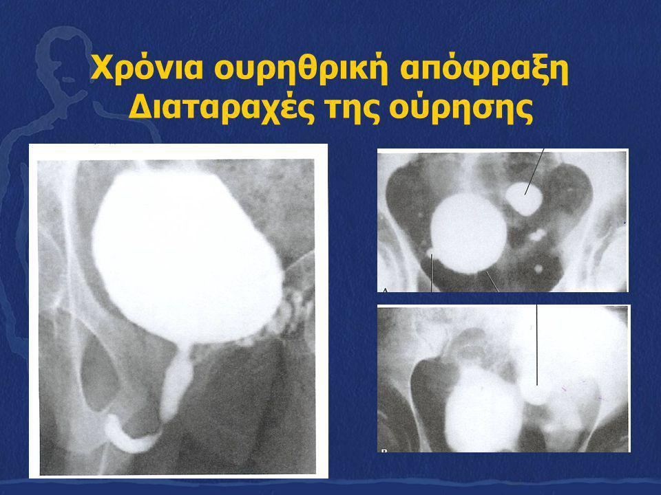 Μερική ατονία του εξωστήρα, που κουράζεται εύκολα (Δεύτερη φάση ή φάση της μερικής ατονίας ή μερικής αντιρρόπησης της απόφραξης) - Δυσχέρεια στην έξοδο των ούρων ( δυσουρία, με τις διάφορες μορφές της, μείωση της δύναμης της ακτίνας των ούρων, ατελής κένωση της κύστης, παραμονή υπολείμματος, υπολειπόμενο ποσό ούρων, Δεύτερη διαταραχή της ούρησης) - Ε υρήματα στην ουροροομετρία - Έλεγχος υπολειπόμενου ποσού ούρων - Οξεία επίσχεση των ούρων ( Τρίτη διαταραχή ούρησης)