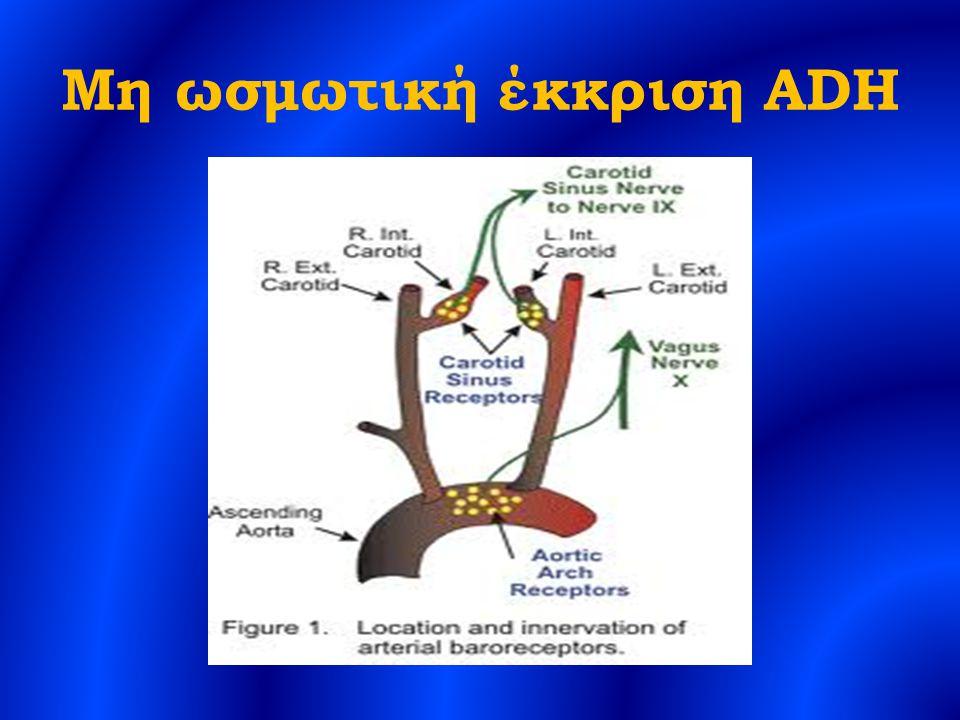 Μη ωσμωτική έκκριση ADH