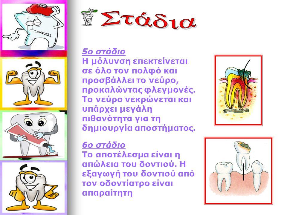 5ο στάδιο Η μόλυνση επεκτείνεται σε όλο τον πολφό και προσβάλλει το νεύρο, προκαλώντας φλεγμονές. Το νεύρο νεκρώνεται και υπάρχει μεγάλη πιθανότητα γι