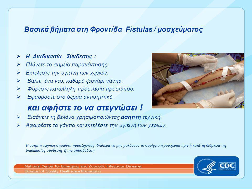 Βασικά βήματα στη Φροντίδα Fistulas / μοσχεύματος  Η Διαδικασία Σύνδεσης :  Πλύνετε το σημείο παρακέντησης.  Εκτελέστε την υγιεινή των χεριών.  Βά