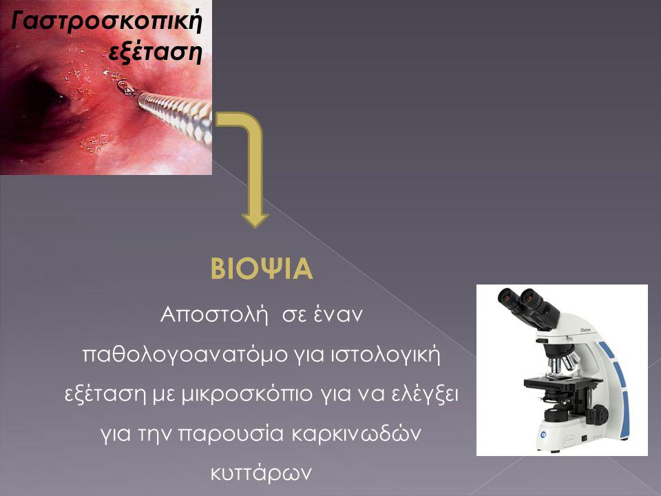 ΒΙΟΨΙΑ Αποστολή σε έναν παθολογοανατόμο για ιστολογική εξέταση με μικροσκόπιο για να ελέγξει για την παρουσία καρκινωδών κυττάρων Γαστροσκοπική εξέτασ