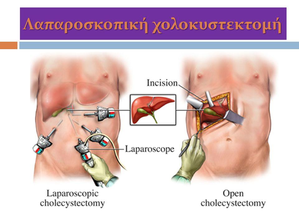 Λαπαροσκοπική χολοκυστεκτομή