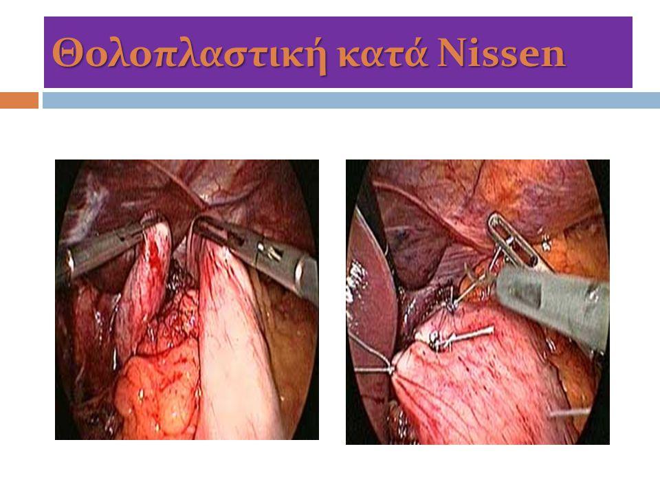 Θολοπλαστική κατά Nissen