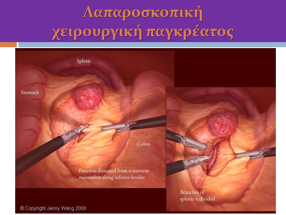 Λαπαροσκοπική χειρουργική παγκρέατος