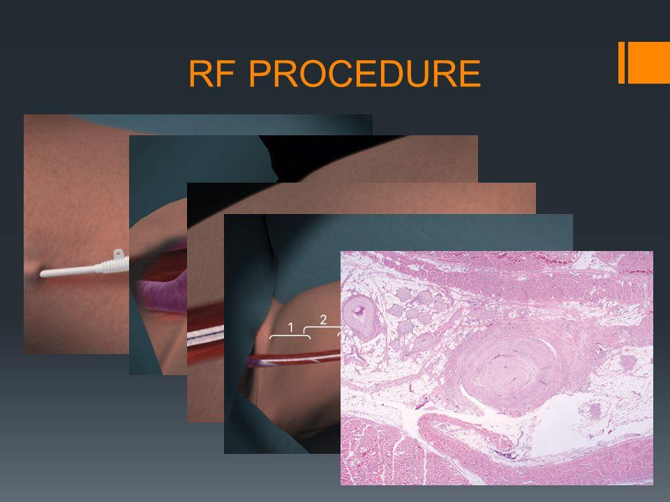 RF PROCEDURE