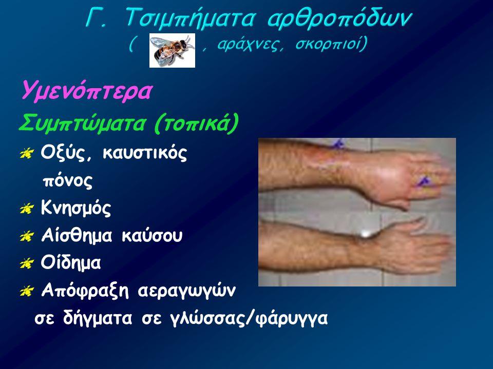 Υμενόπτερα Συμπτώματα (τοπικά)  Οξύς, καυστικός πόνος  Κνησμός  Αίσθημα καύσου  Οίδημα  Απόφραξη αεραγωγών σε δήγματα σε γλώσσας/φάρυγγα