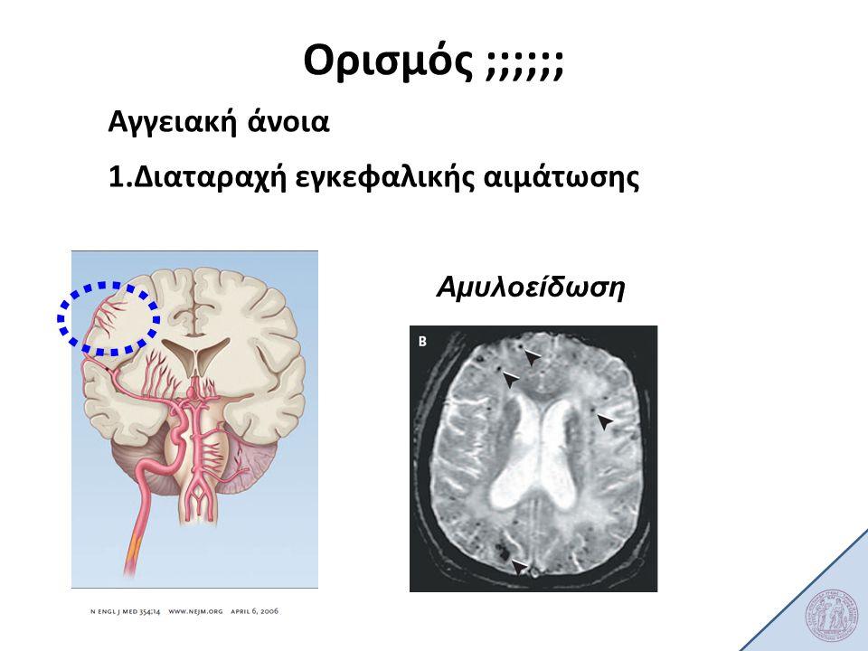 Ορισμός ;;;;;; Αγγειακή άνοια 1.Διαταραχή εγκεφαλικής αιμάτωσης Αμυλοείδωση