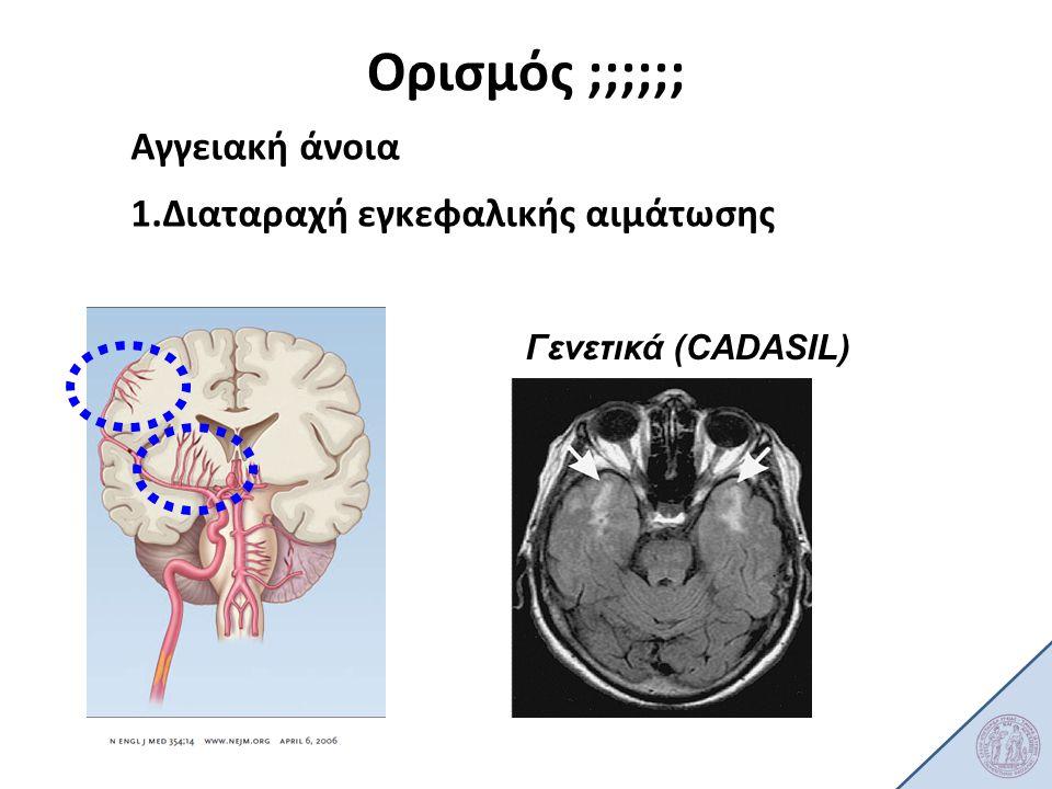 Ορισμός ;;;;;; Αγγειακή άνοια 1.Διαταραχή εγκεφαλικής αιμάτωσης cadasil Μεγάλα αγγεία