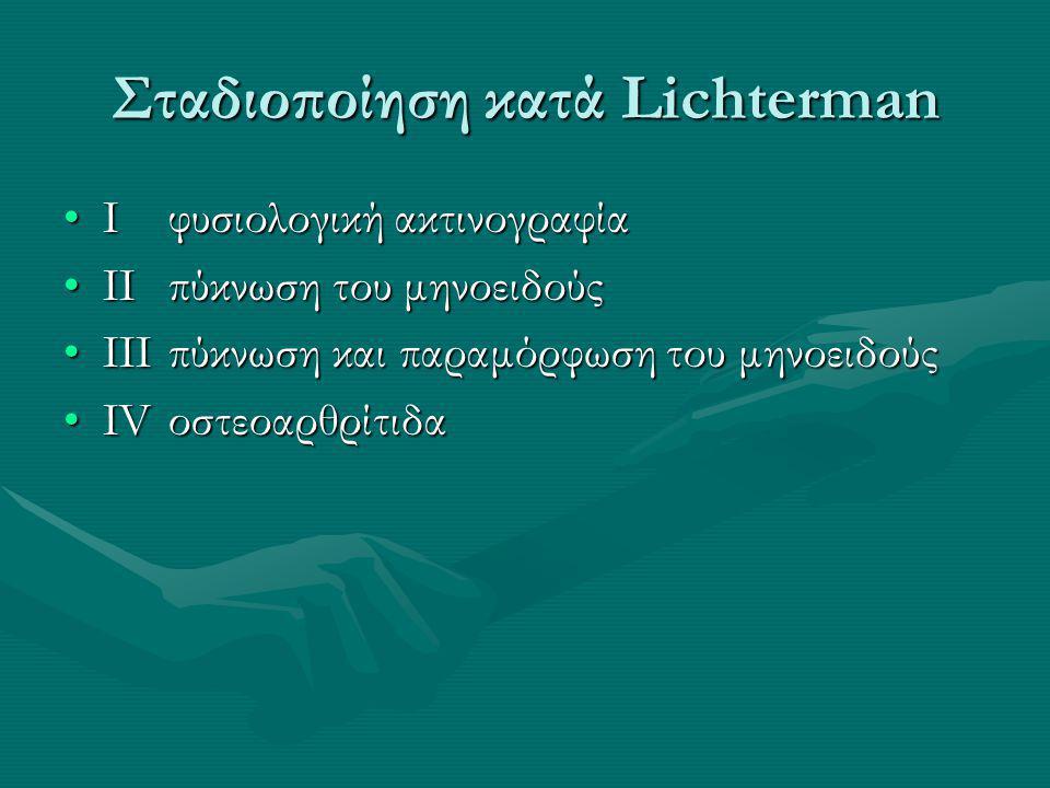 Σταδιοποίηση κατά Lichterman I φυσιολογική ακτινογραφίαI φυσιολογική ακτινογραφία II πύκνωση του μηνοειδούςII πύκνωση του μηνοειδούς III πύκνωση και παραμόρφωση του μηνοειδούςIII πύκνωση και παραμόρφωση του μηνοειδούς IV οστεοαρθρίτιδαIV οστεοαρθρίτιδα