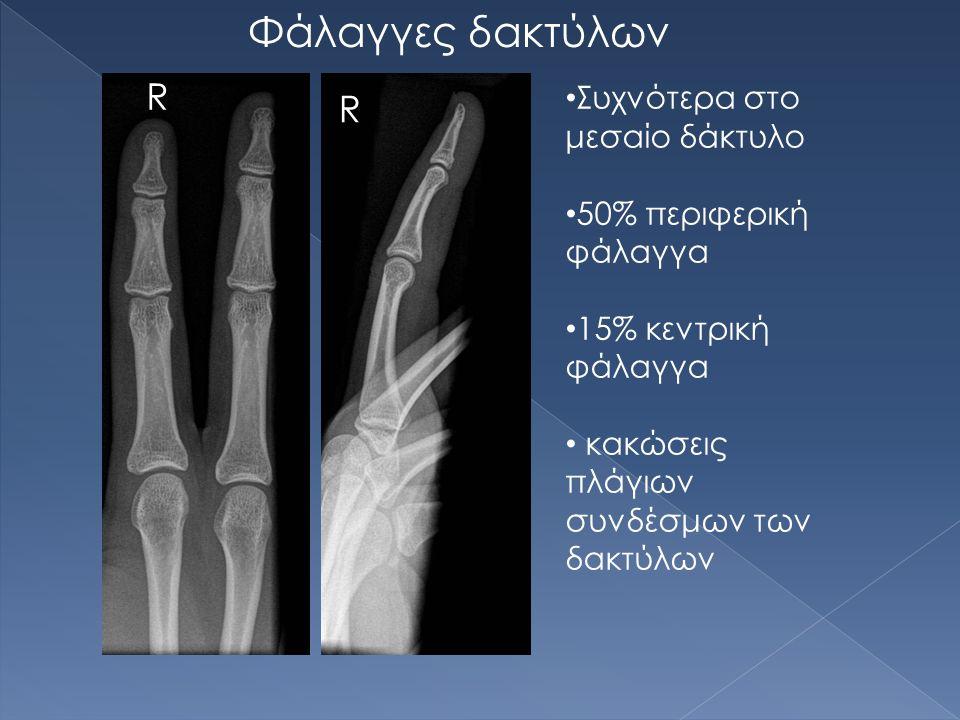 R R Φάλαγγες δακτύλων Συχνότερα στο μεσαίο δάκτυλο 50% περιφερική φάλαγγα 15% κεντρική φάλαγγα κακώσεις πλάγιων συνδέσμων των δακτύλων