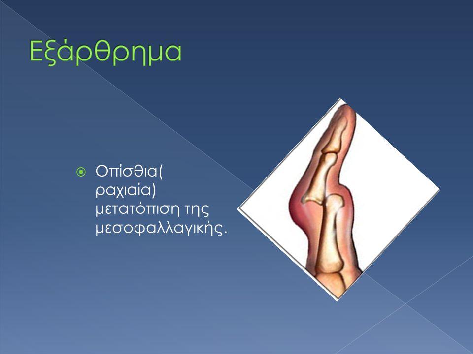  Οπίσθια( ραχιαία) μετατόπιση της μεσοφαλλαγικής.