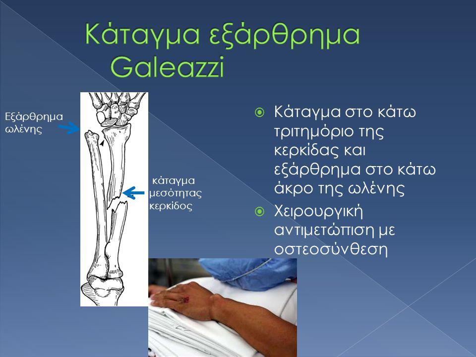  Κάταγμα στο κάτω τριτημόριο της κερκίδας και εξάρθρημα στο κάτω άκρο της ωλένης  Χειρουργική αντιμετώπιση με οστεοσύνθεση κάταγμα μεσότητας κερκίδος Εξάρθρημα ωλένης