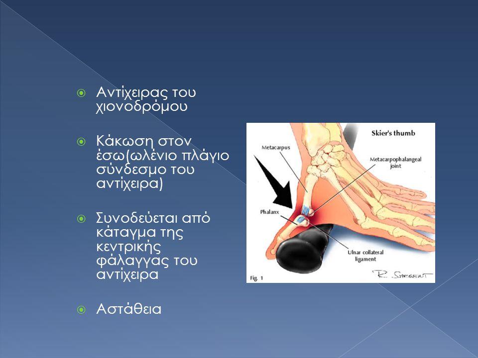  Αντίχειρας του χιονοδρόμου  Κάκωση στον έσω(ωλένιο πλάγιο σύνδεσμο του αντίχειρα)  Συνοδεύεται από κάταγμα της κεντρικής φάλαγγας του αντίχειρα  Αστάθεια