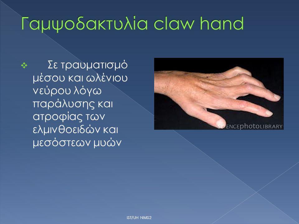  Σε τραυματισμό μέσου και ωλένιου νεύρου λόγω παράλυσης και ατροφίας των ελμινθοειδών και μεσόστεων μυών IST/UH NMS2