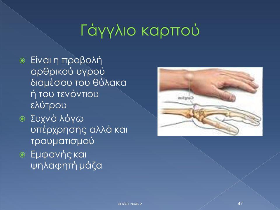  Είναι η προβολή αρθρικού υγρού διαμέσου του θύλακα ή του τενόντιου ελύτρου  Συχνά λόγω υπέρχρησης αλλά και τραυματισμού  Εμφανής και ψηλαφητή μάζα UH/IST NMS 2 47