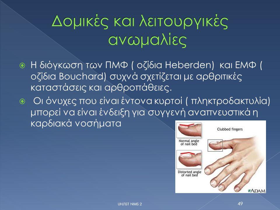  Η διόγκωση των ΠΜΦ ( οζίδια Heberden) και ΕΜΦ ( οζίδια Bouchard) συχνά σχετίζεται με αρθριτικές καταστάσεις και αρθροπάθειες.