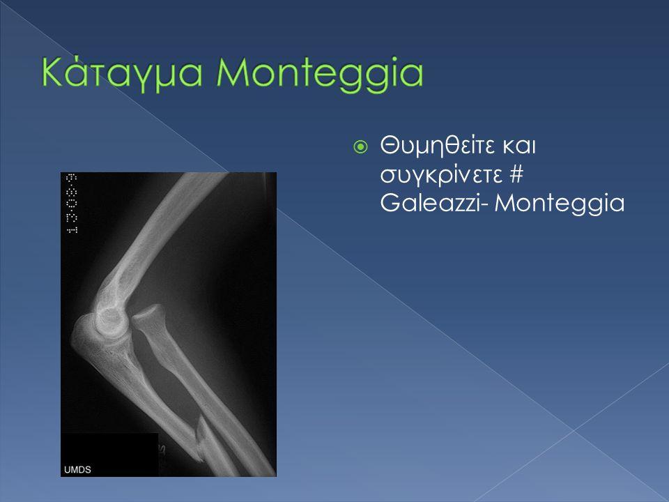  Θυμηθείτε και συγκρίνετε # Galeazzi- Monteggia