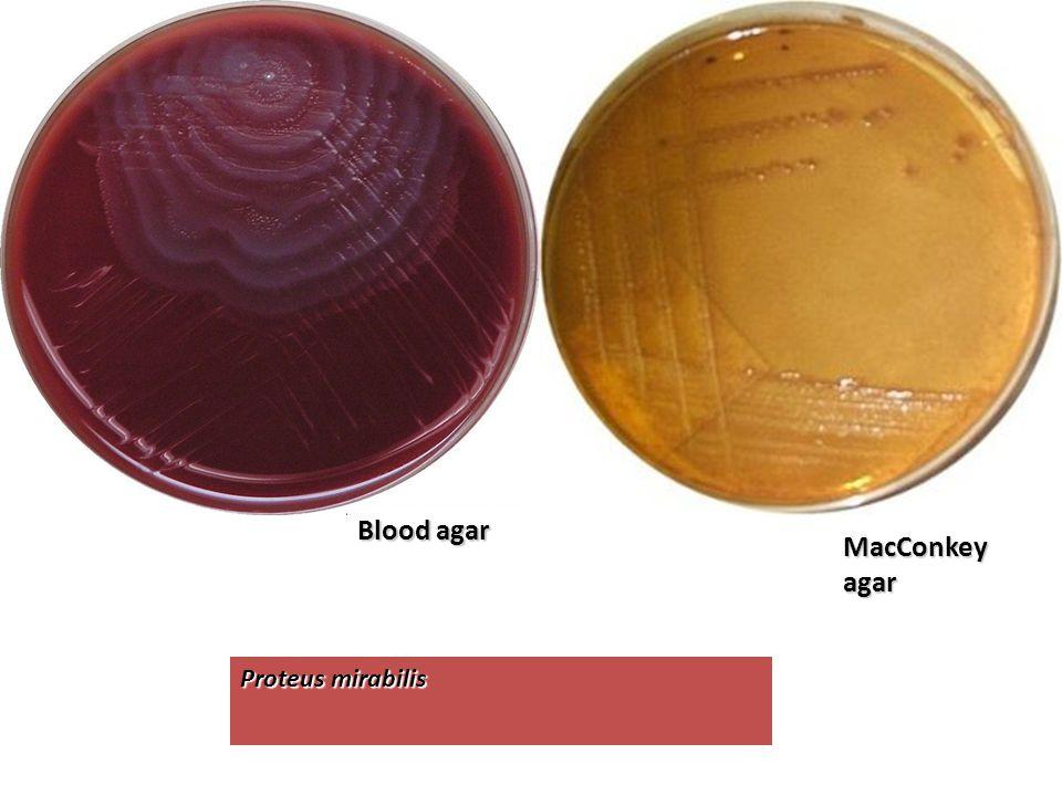 Proteus mirabilis Blood agar MacConkeyagar
