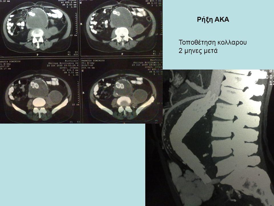 Τοποθέτηση κολλαρου 2 μηνες μετά Ρήξη ΑΚΑ