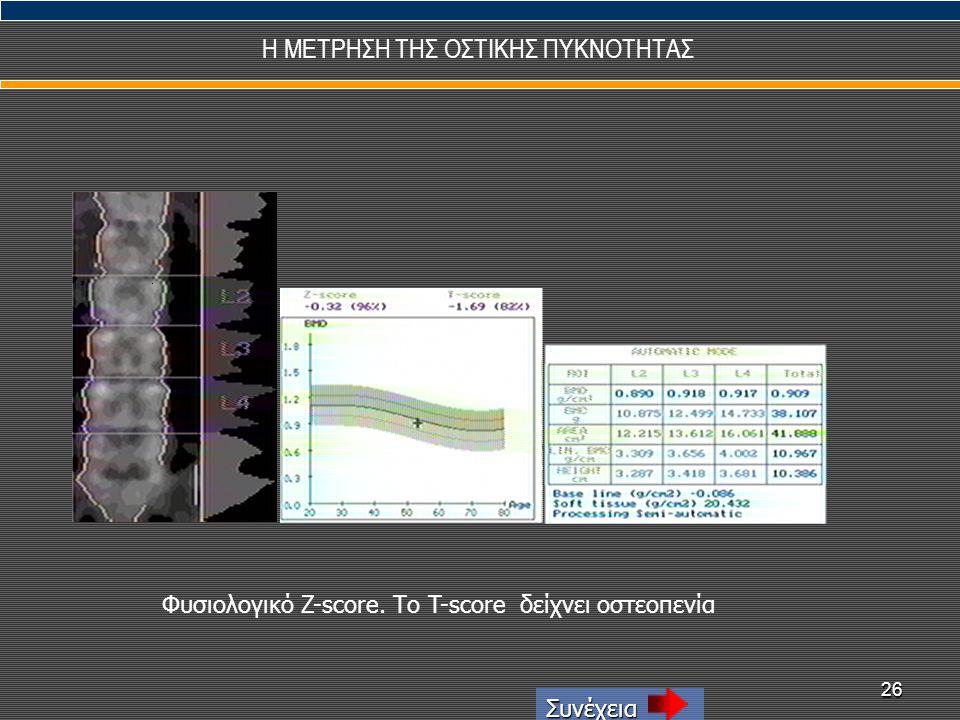 26 Η ΜΕΤΡΗΣΗ ΤΗΣ ΟΣΤΙΚΗΣ ΠΥΚΝΟΤΗΤΑΣ Συνέχεια Φυσιολογικό Z-score. Tο T-score δείχνει οστεοπενία