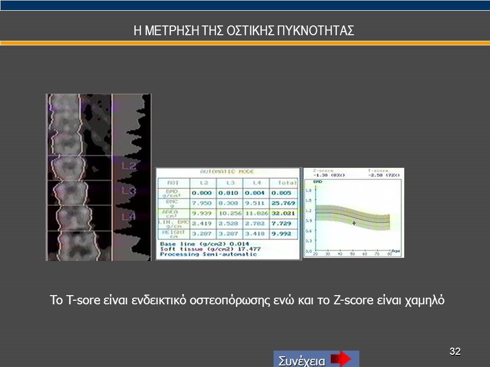 32 Η ΜΕΤΡΗΣΗ ΤΗΣ ΟΣΤΙΚΗΣ ΠΥΚΝΟΤΗΤΑΣ Συνέχεια To T-sore είναι ενδεικτικό οστεοπόρωσης ενώ και το Z-score είναι χαμηλό