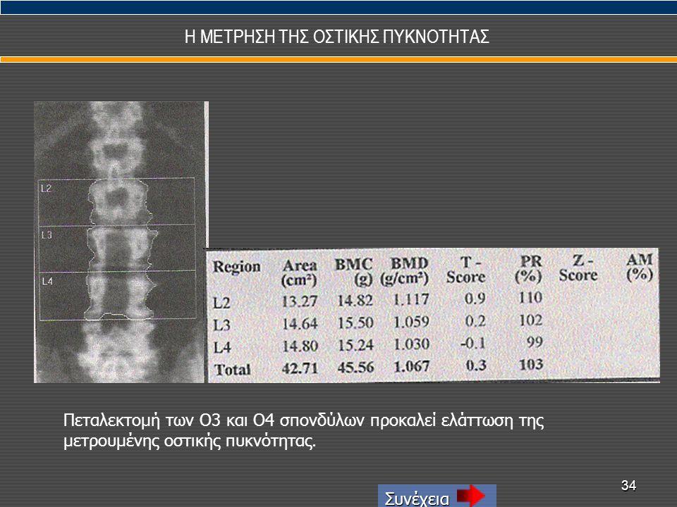 34 Η ΜΕΤΡΗΣΗ ΤΗΣ ΟΣΤΙΚΗΣ ΠΥΚΝΟΤΗΤΑΣ Συνέχεια Πεταλεκτομή των Ο3 και Ο4 σπονδύλων προκαλεί ελάττωση της μετρουμένης οστικής πυκνότητας.