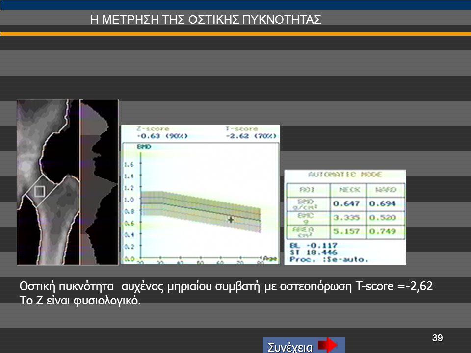 39 Η ΜΕΤΡΗΣΗ ΤΗΣ ΟΣΤΙΚΗΣ ΠΥΚΝΟΤΗΤΑΣ Συνέχεια Οστική πυκνότητα αυχένος μηριαίου συμβατή με οστεοπόρωση T-score =-2,62 Το Ζ είναι φυσιολογικό.