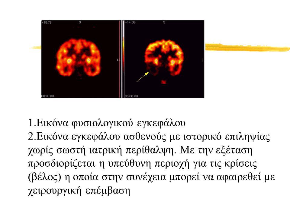 1.Εικόνα φυσιολογικού εγκεφάλου 2.Εικόνα εγκεφάλου ασθενούς με ιστορικό επιληψίας χωρίς σωστή ιατρική περίθαλψη. Με την εξέταση προσδιορίζεται η υπεύθ