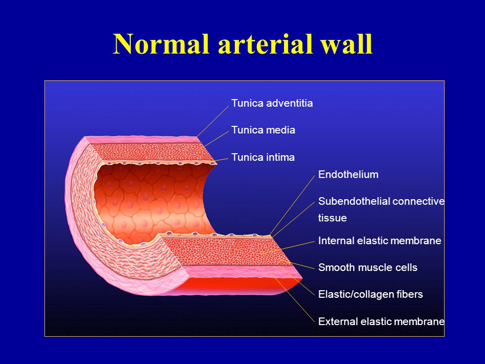 Normal arterial wall Tunica adventitia Tunica media Tunica intima Endothelium Subendothelial connective tissue Internal elastic membrane Smooth muscle cells Elastic/collagen fibers External elastic membrane
