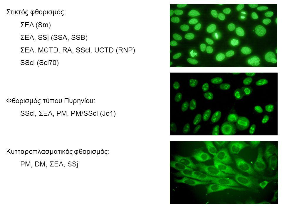 Στικτός φθορισμός: ΣΕΛ (Sm) ΣΕΛ, SSj (SSA, SSB) ΣΕΛ, ΜCTD, RΑ, SScl, UCTD (RNP) SScl (Scl70) Φθορισμός τύπου Πυρηνίου: SScl, ΣΕΛ, PM, PM/SScl (Jo1) Κυτταροπλασματικός φθορισμός: PM, DM, ΣΕΛ, SSj