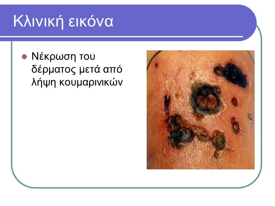 Κλινική εικόνα Νέκρωση του δέρματος μετά από λήψη κουμαρινικών