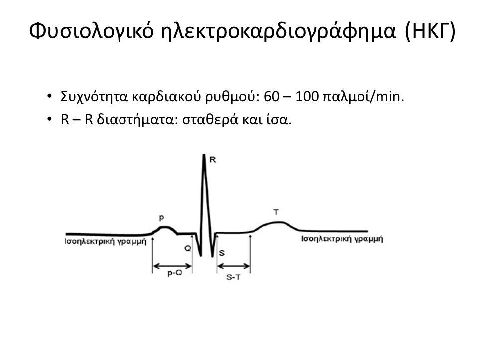 Φυσιολογικό ηλεκτροκαρδιογράφημα (ΗΚΓ) Συχνότητα καρδιακού ρυθμού: 60 – 100 παλμοί/min. R – R διαστήματα: σταθερά και ίσα.