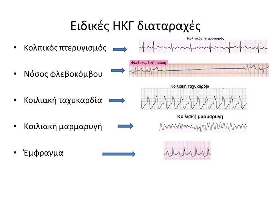 Διαφορικός ενισχυτής οργάνων καρδιογραφήματος (1+26,7)x20 = 27,7x20 = 554 για R1 = 26,7 kΩ, Rgain = 1 kΩ, R3 = 200 kΩ, R2 = 10 kΩ
