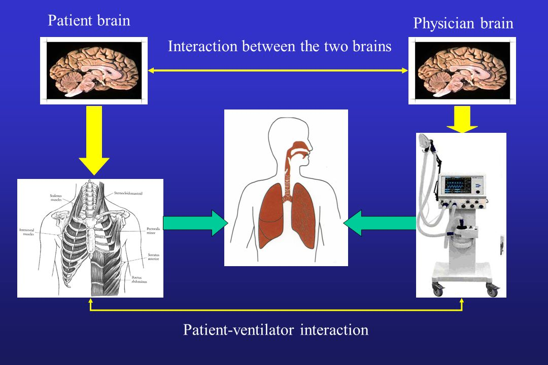 Patient brain Physician brain Interaction between the two brains Patient-ventilator interaction