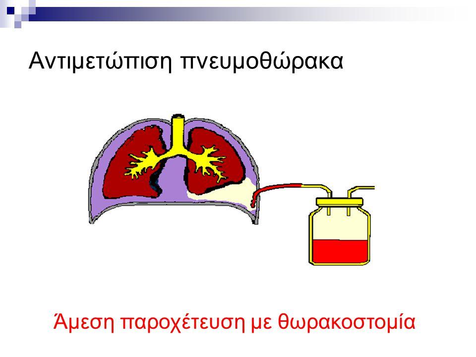Αντιμετώπιση πνευμοθώρακα Άμεση παροχέτευση με θωρακοστομία