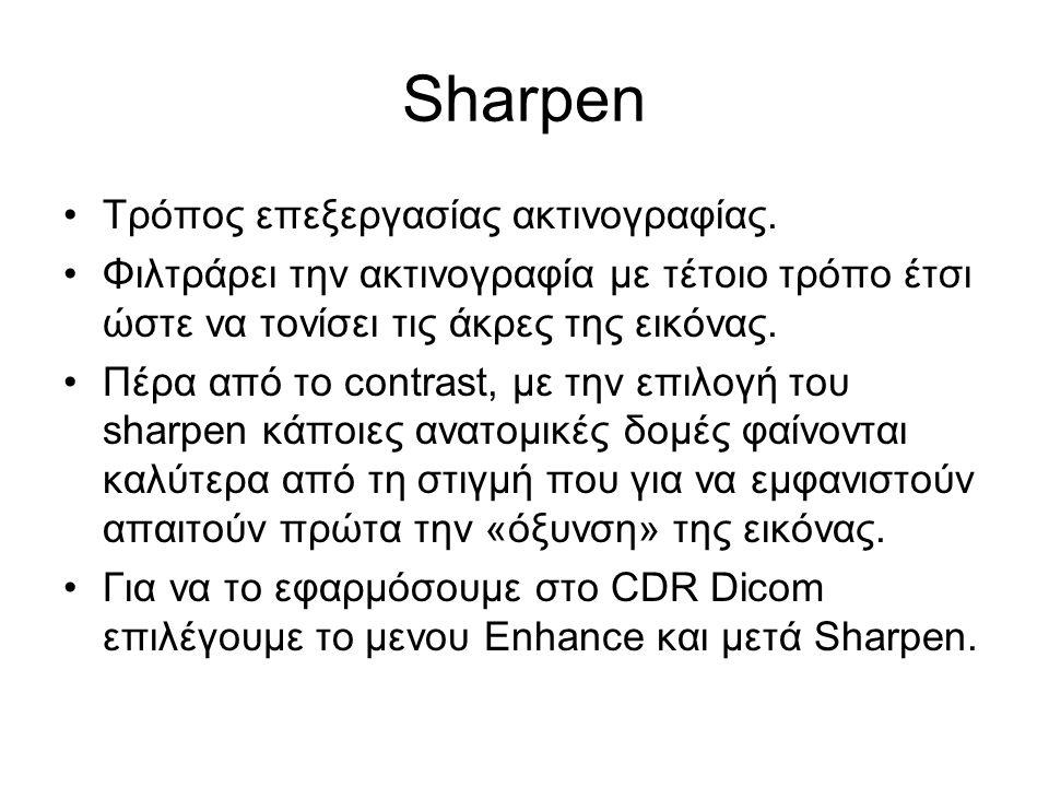 Sharpen Τρόπος επεξεργασίας ακτινογραφίας. Φιλτράρει την ακτινογραφία με τέτοιο τρόπο έτσι ώστε να τονίσει τις άκρες της εικόνας. Πέρα από το contrast