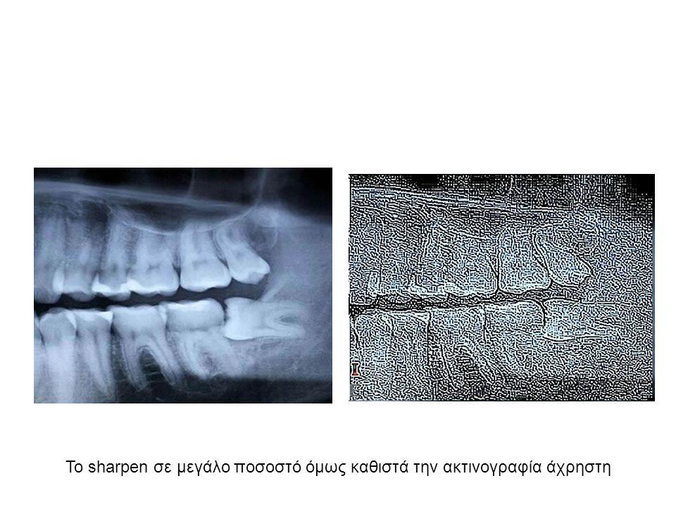 Το sharpen σε μεγάλο ποσοστό όμως καθιστά την ακτινογραφία άχρηστη