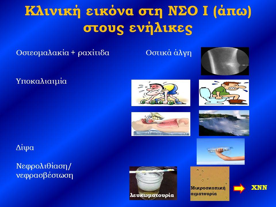 Κλινική εικόνα στη ΝΣΟ Ι (άπω) στους ενήλικες Οστεομαλακία + ραχίτιδα Οστικά άλγη Υποκαλιαιμία Δίψα Νεφρολιθίαση/ νεφρασβέστωση λευκωματουρία Μικροσκοπική αιματουρία ΧΝΝ