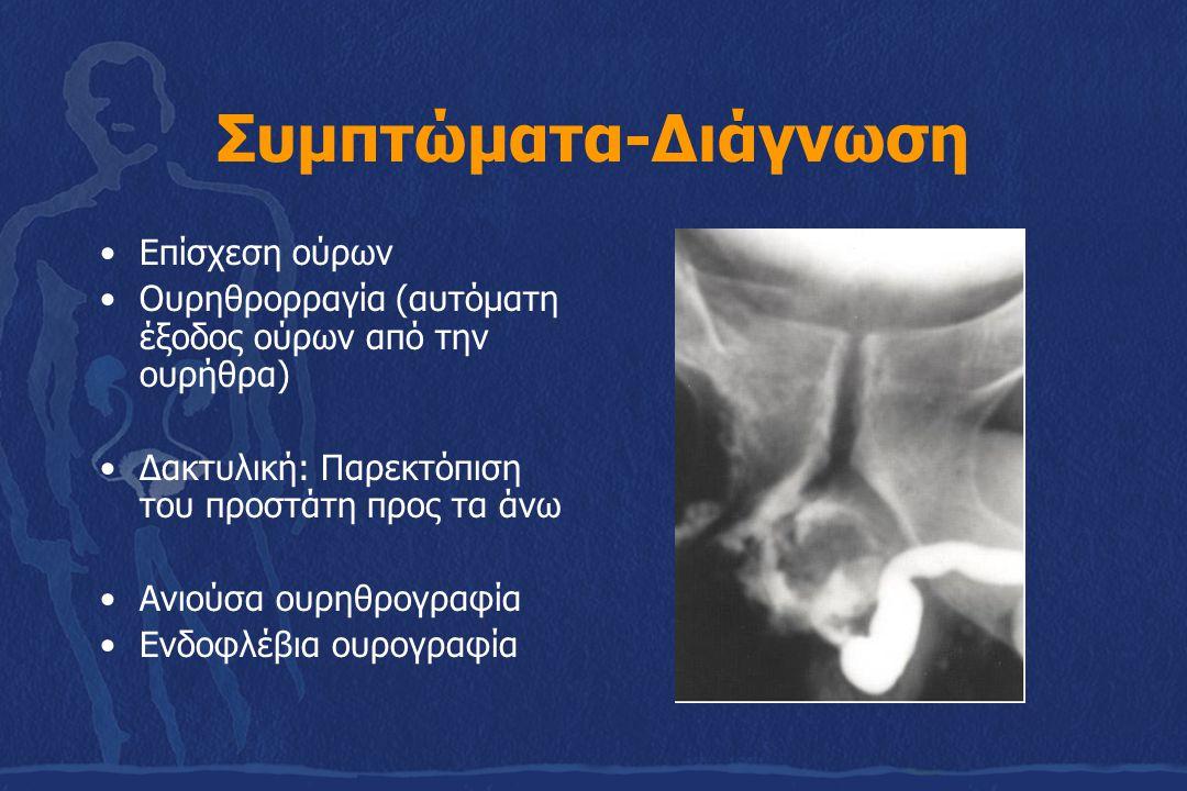 Συμπτώματα-Διάγνωση Επίσχεση ούρων Ουρηθρορραγία (αυτόματη έξοδος ούρων από την ουρήθρα) Δακτυλική: Παρεκτόπιση του προστάτη προς τα άνω Ανιούσα ουρηθ