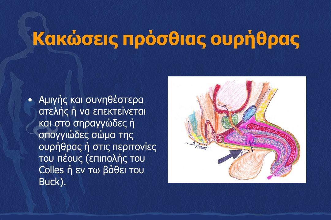 Κακώσεις πρόσθιας ουρήθρας Αμιγής και συνηθέστερα ατελής ή να επεκτείνεται και στο σηραγγώδες ή σπογγιώδες σώμα της ουρήθρας ή στις περιτονίες του πέο
