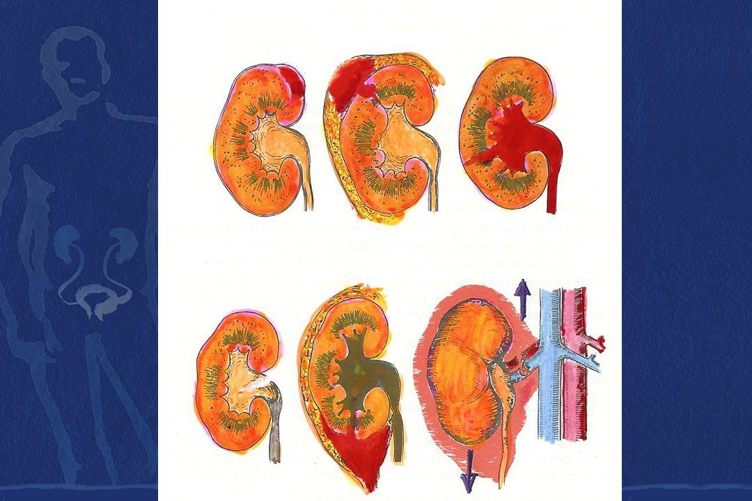 Κλινική εικόνα Μακροσκοπική και ολική αιματουρία.Πόνος στην οσφύ.