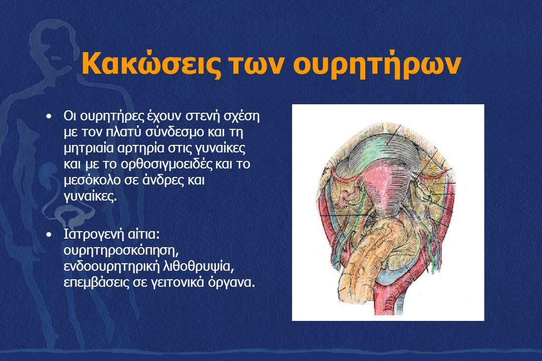 Συμπτώματα-Διάγνωση Επίσχεση ούρων Ουρηθρορραγία (αυτόματη έξοδος ούρων από την ουρήθρα) Δακτυλική: Παρεκτόπιση του προστάτη προς τα άνω Ανιούσα ουρηθρογραφία Ενδοφλέβια ουρογραφία