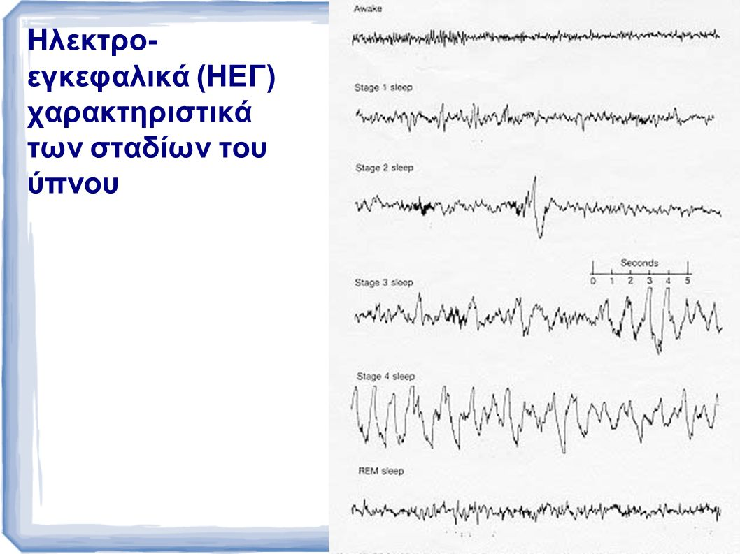 ΣΤΑΔΙΑ ΤΟΥ ΥΠΝΟΥ Αναγνωρίζονται πέντε διαφορετικά στάδια ύπνου, τα 1-4 και ο ύπνος REM Από το στάδιο 1 που είναι «κοντά» στην εγρήγορση, μέχρι το στάδιο 4 ο ύπνος όλο και βαθαίνει: Το ΗΕΓ δείχνει όλο και μεγαλύτερη αναστολή του εγκεφαλικού φλοιού Το μυογράφημα δείχνει μυϊκή χαλάρωση Η αφύπνιση είναι όλο και πιο δύσκολη Το στάδιο REM είναι «παράδοξος ύπνος»: Ο φλοιός του εγκεφάλου δραστηριοποιείται έντονα Ο μυϊκός τόνος καταργείται τελείως Τα μάτια κινούνται με ριπές κινήσεων Η αφύπνιση είναι δύσκολη Υπάρχει ανάμνηση ονείρων