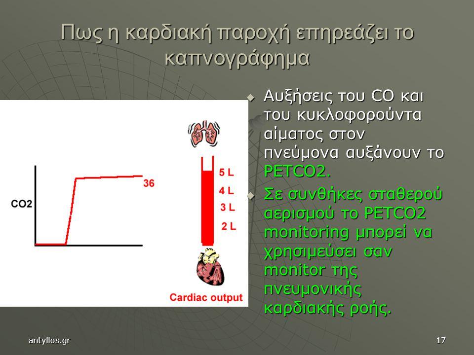 17 Πως η καρδιακή παροχή επηρεάζει το καπνογράφημα  Αυξήσεις του CO και του κυκλοφορούντα αίματος στον πνεύμονα αυξάνουν το PETCO2.  Σε συνθήκες στα