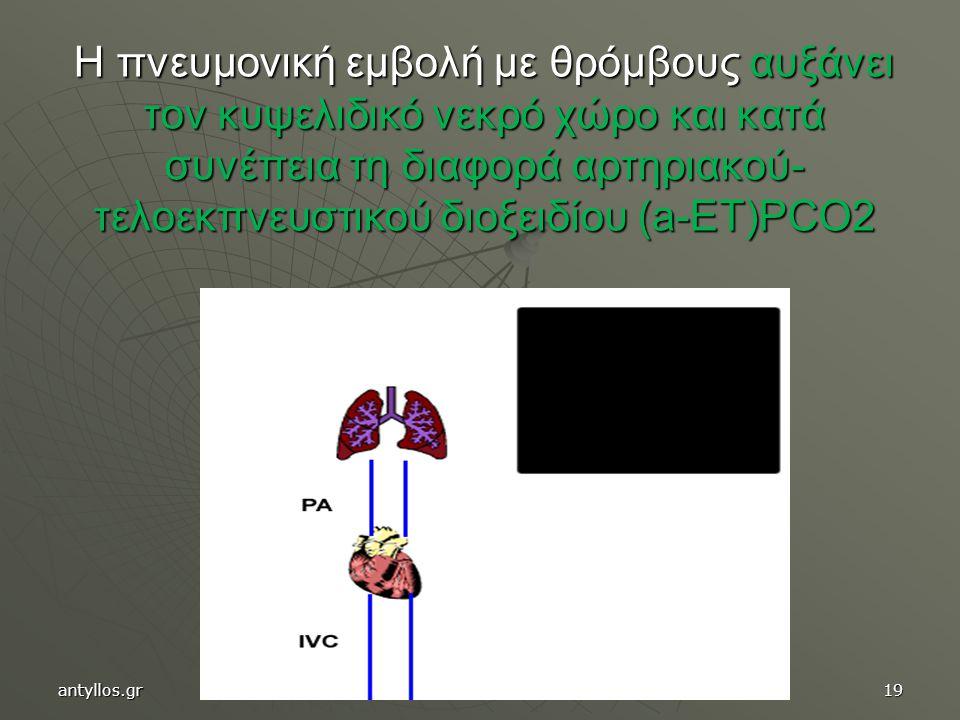 19 Η πνευμονική εμβολή με θρόμβους αυξάνει τον κυψελιδικό νεκρό χώρο και κατά συνέπεια τη διαφορά αρτηριακού- τελοεκπνευστικού διοξειδίου (a-ET)PCO2 a