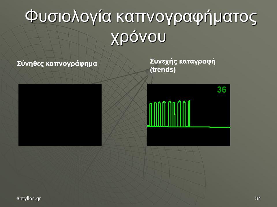 37 Φυσιολογία καπνογραφήματος χρόνου Φυσιολογία καπνογραφήματος χρόνου Σύνηθες καπνογράφημα Συνεχής καταγραφή (trends) antyllos.gr