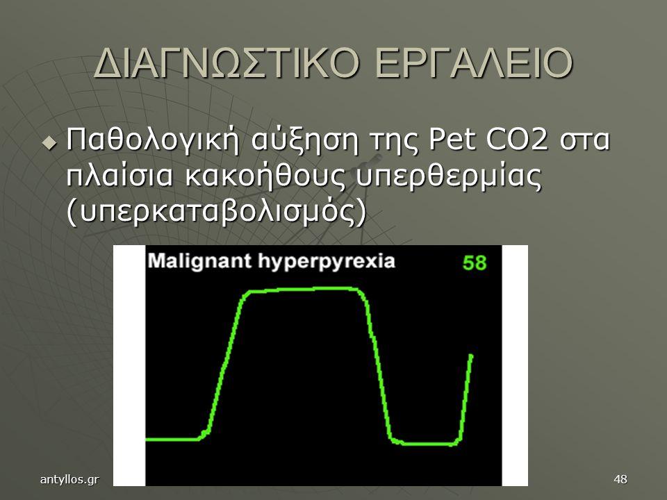 ΔΙΑΓΝΩΣΤΙΚΟ ΕΡΓΑΛΕΙΟ  Παθολογική αύξηση της Pet CO2 στα πλαίσια κακοήθους υπερθερμίας (υπερκαταβολισμός) antyllos.gr48