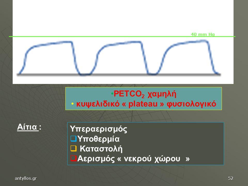 PETCO 2 χαμηλή κυψελιδικό « plateau » φυσιολογικό Υπεραερισμός  Υποθερμία  Καταστολή  Αερισμός « νεκρού χώρου » 40 mm Hg Αίτια : antyllos.gr52
